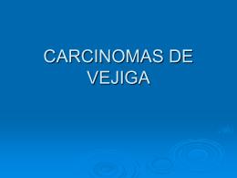 Cistouretroscopia y reseccion del tumor