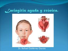 Laringitis aguda y crónica. - dr rafael gutierrez garcia
