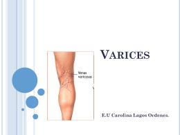 varices (2276864)