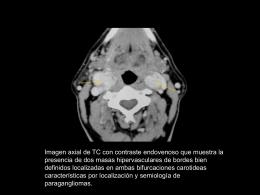Presentación 2: Diagnostico y embolización de glomus carotideos
