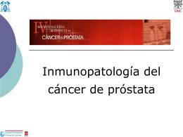 Sistema inmunológico/inflamatorio y cáncer de próstata