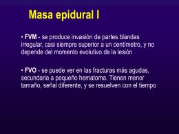 masa_epidural