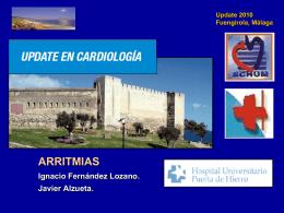 Arritmias - CardioAtrio