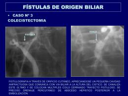 FÍSTULAS DE ORIGEN BILIAR