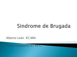 Sindrome de Brugada