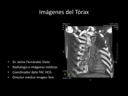Imgenes Trax