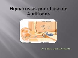 Hipoacusias por el uso de Audífonos