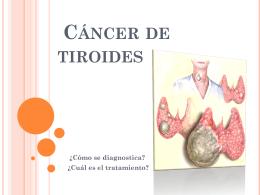 ¿Qué es el cáncer de tiroides?