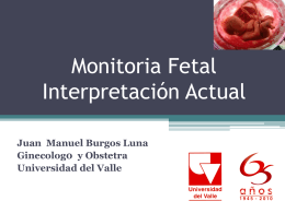 Monitoria Fetal general