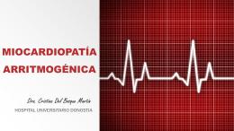 Miocardiopatía arritmogénica