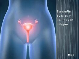 Ecografia Ginecologica - Diagnóstico por imágenes Haedo HIGA