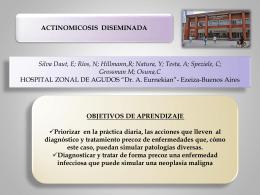 Actinomicosis Diseminada