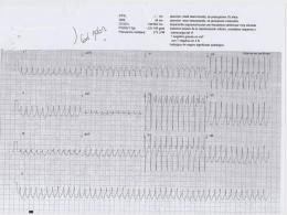 ECG Febrero 2.014 - Urgencias Donostia