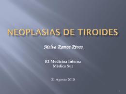 NEOPLASIAS DE TIROIDES