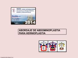 abordaje abdominoplastia - Dr. Tomás Ramón Ibarra Hurtado