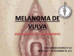melanoma de vulva – generalidades y tratamiento