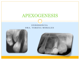 APEXOGENESIS - 3 Odontologia Ceus