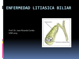 Enfermedad Litiásica Biliar - Unidad Hospitalaria San Roque