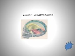 MENINGIOMAS-2 - MODULORADIOTERAPIA