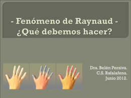 - Fenómeno de Raynaud
