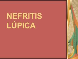 NEFRITIS LÚPICA - Seccionseis's Weblog