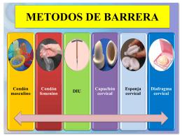 Métodos anticonceptivos de barrera y naturales