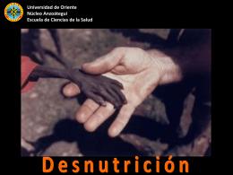 CLASIFICACIÓN DE LA DESNUTRICIÓN