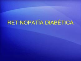 TALLER DE RETINOPATÍA DIABÉTICA