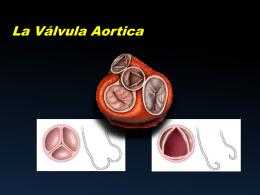 La válvula Aortica - Curso de ecografía en UCI