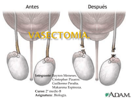 Vasectomía.