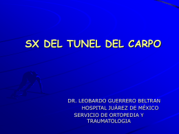 SINDROME DEL TUNEL DEL CARPO