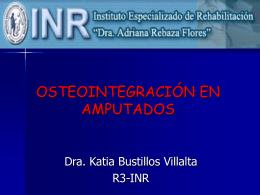 OSTEOINTEGRACIÓN EN AMPUTADOS