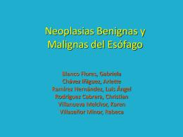 Neoplasias Benignas y Malignas del Esófago