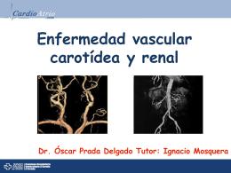 Sesión Cardioatrio: Enfermedad aterosclerótica