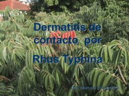 DERMATITIS POR RHUS - Cátedra Dermatología