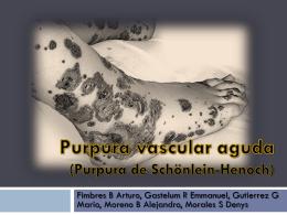 Purpura vascular aguda (Purpura de