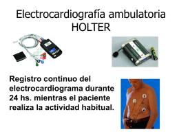 Electrocardiografía ambulatoria HOLTER