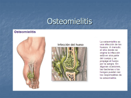 Osteomielitis - BIENVENIDOS