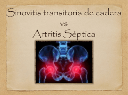 Sinovitis transitoria de cadera vs Artritis