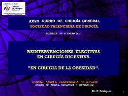 REINTERVENCIONES ELECTIVAS EN CIRUGÍA DIGESTIVA.
