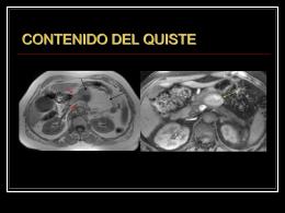 LESIONES QUÍSTICAS DE PANCREAS