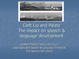 Cleft Lip and Palate The impact on speech &