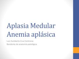 Aplasia Medula Anemia aplásica