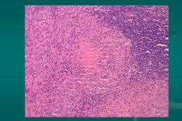 Linfadenitis no específica aguda