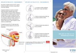 475 Información para el Paciente V1