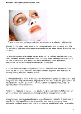 """En belleza """"Mascarillas caseras contra el acné"""""""