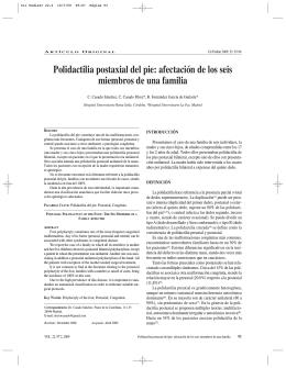 Polidactilia postaxial del pie: afectación de los seis miembros de