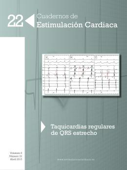Descargar PDF - Sociedad Española de Cardiología