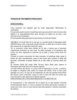 TÉCNICAS DE TRATAMIENTO PODOLOGICO ONICOTOMIA: Uñas