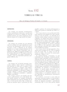 Tema 152 VERRUGAS VÍRICAS